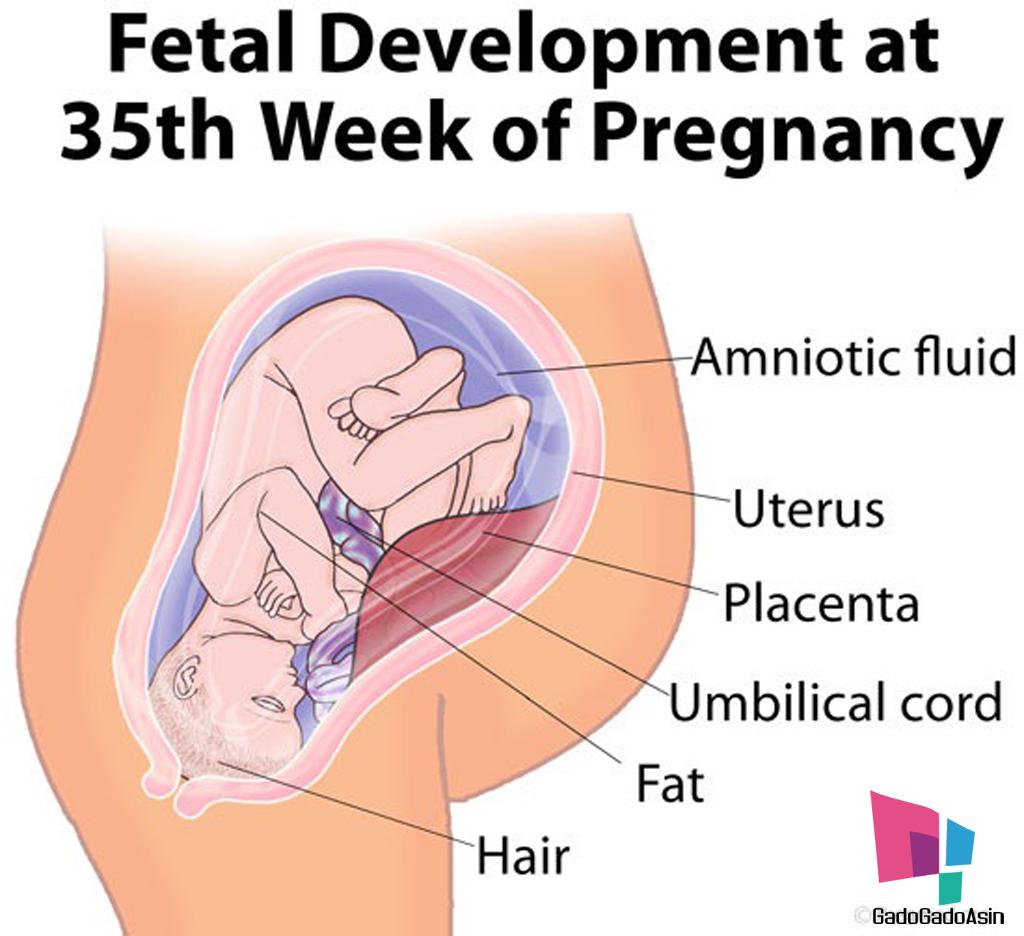 posisi-bayi-usia-35-minggu
